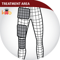 BFST IT Band Treatment Areas