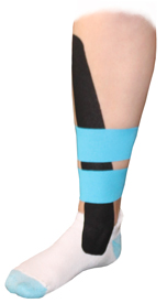Tibialis Anterior Tendonitis Tape Application