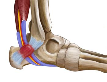 King Brand Side View of Ankle Injury Ligaments Tendons