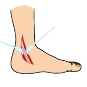 Ankle Tendon Cleaning Surgery