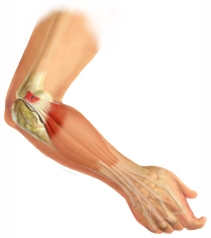 Elbow Injury Treatment
