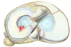 King Brand Top View of the Meniscus Tear Knee Injury Solutions