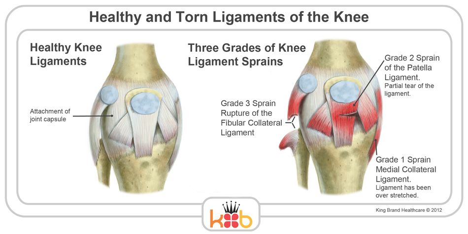 King Brand Knee Injury Image Diagram Ligaments Bones Muscle Labelled Diagram