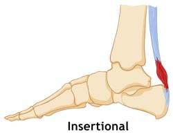 Kingbrand Tendonitis (Insertional) Diagram