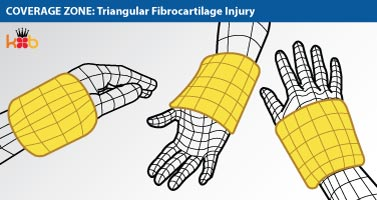 A wire drawing showing the coverage zone that a King Brand® Wrist Wrap would have to be able to treat a Triangular Fibrocartilage injury
