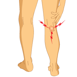 An Illustration of a Person Suffering from Bakers Cyst Pain