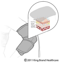 An X-Ray Illustration of the King Brand BFST® Wrap in Action